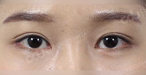 lateral_canthoplasty_before-after-picture-1c