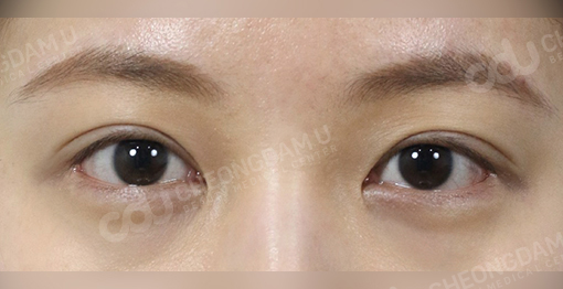 multi_canthoplasty_before_after_picture-1c